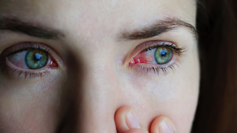 Woman with a chemical eye injury.